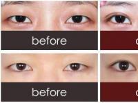 埋线双眼皮跟切开双眼皮哪个效果更持久?