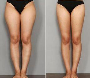 大腿吸脂减肥有哪些问题?