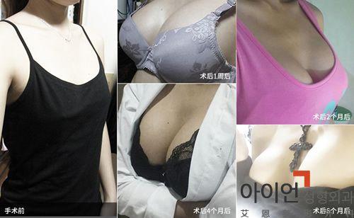 韩国哪个医院做隆胸好?