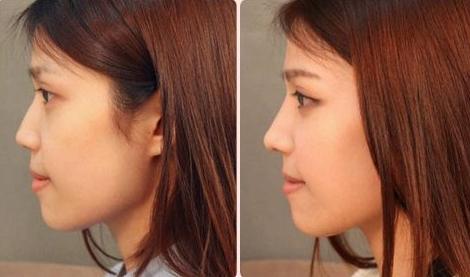 隆鼻手术的方式