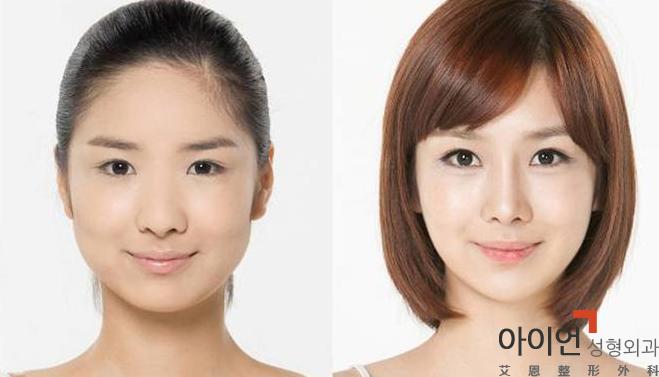 打瘦脸针会有副作用吗?