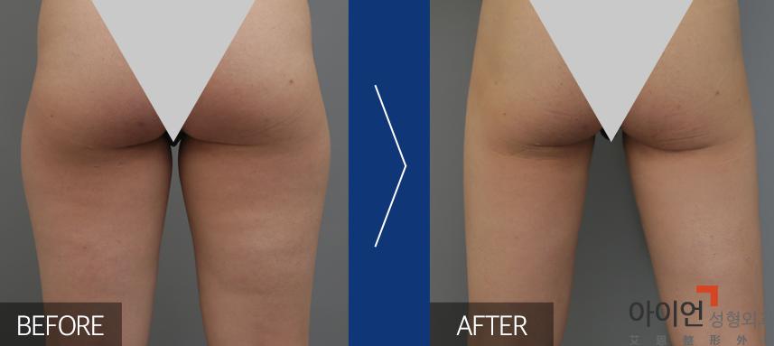 大腿吸脂减肥会有副作用吗?