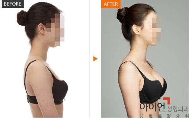 假体隆胸术后能保持多久?