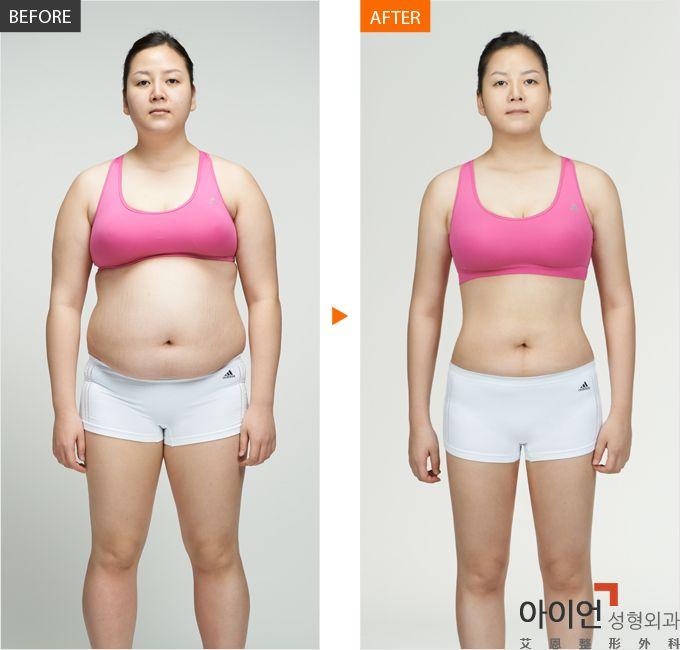 产后肥胖不要怕,艾恩整形帮你变辣妈!